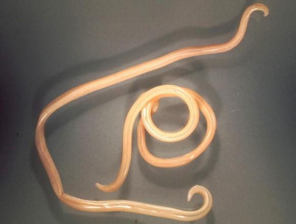 paraziták okozta sebek a bőrön férgek az emberek számára