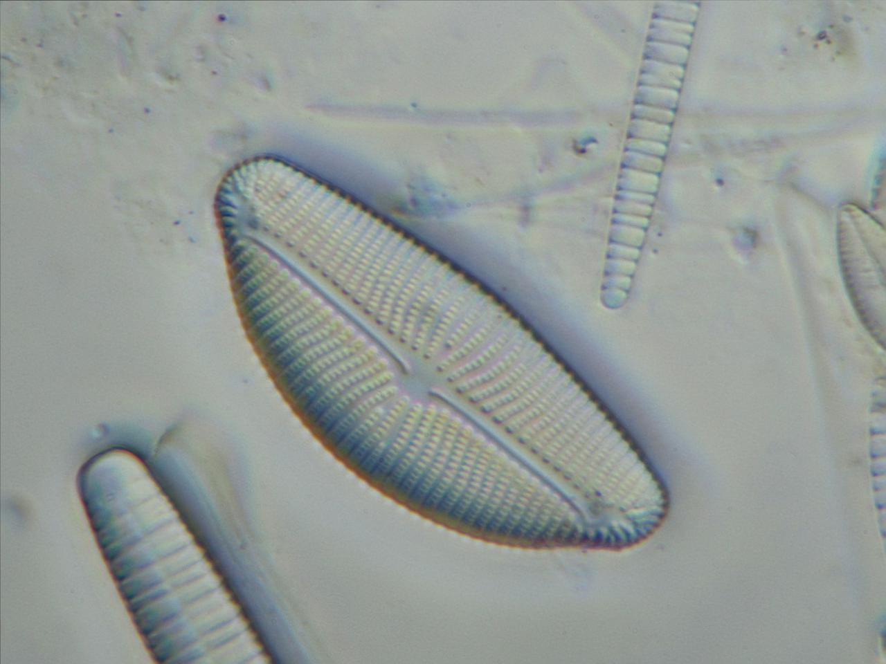 élő paraziták emberben a strongyloidiasis terjed