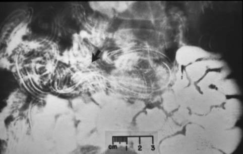 permet parazitáktól bolfo vélemények pinworm hasi fájdalom