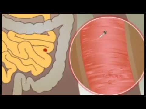 Paraziták és orvosi böjt. Hogyan lehet megszabadulni a parazitáktól böjtöléssel