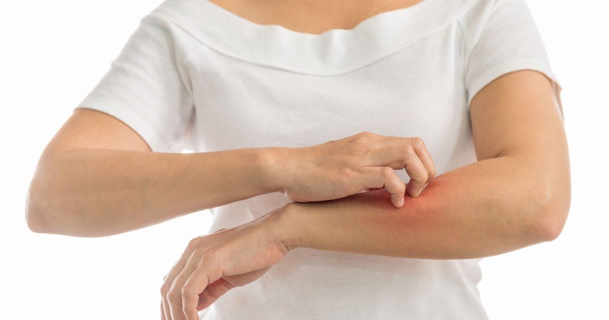 a test bőr parazitáinak viszketésével járó kezelés