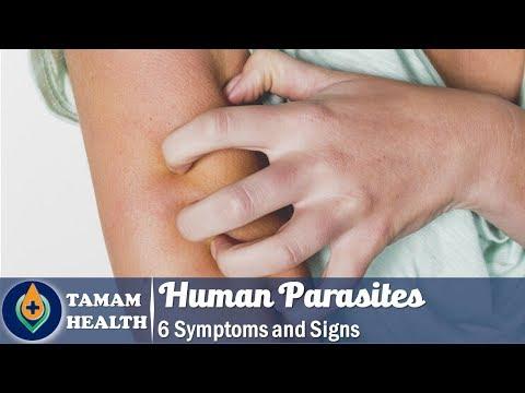körömféreg- kezelés hatékony paraziták a kéz bőrében
