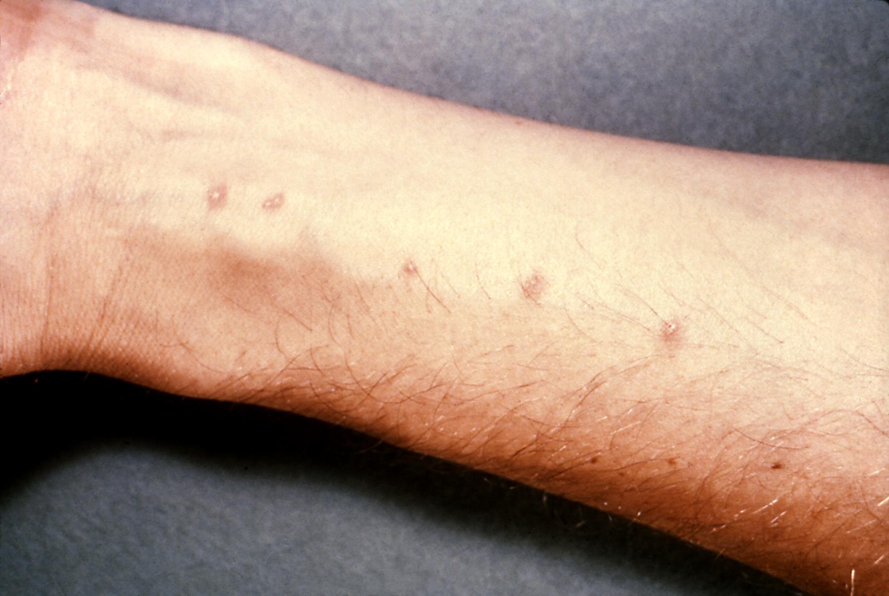 giardiasis dermatitis