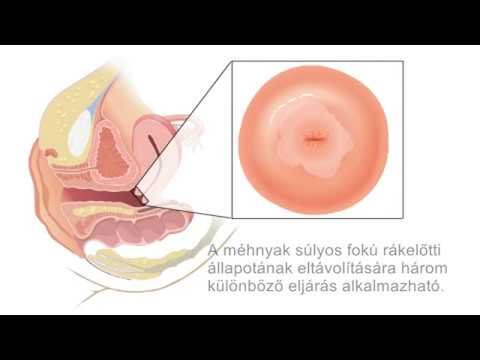 helminthiasis petesejtek parazita féreg pinworm