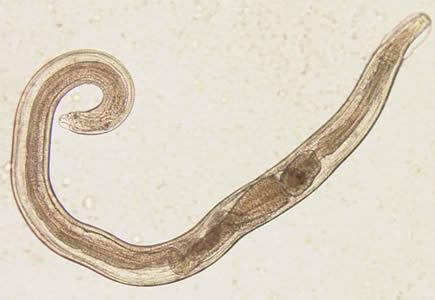 Pinworm petesejt Milyen tabletták a paraziták számára