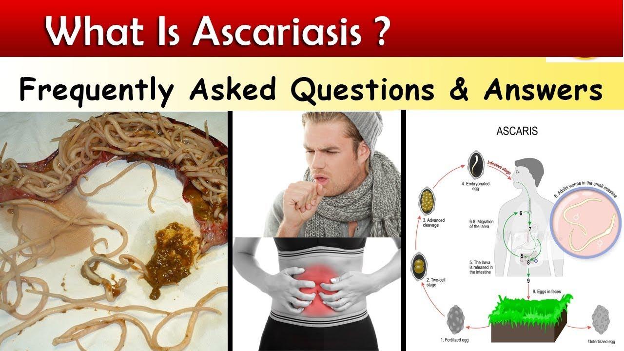 ascaris által érintett emberi szervek