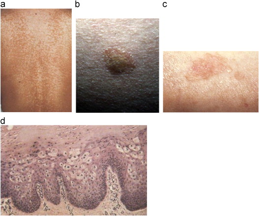 végleg megszabadulni a pinwormtól a a helminthiasis kezelésének módszerei