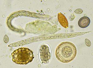 paraziták vagy megfertőzni paraziták az emberi testben étrend- kiegészítő