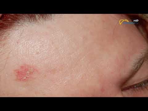 A melanoma parazita