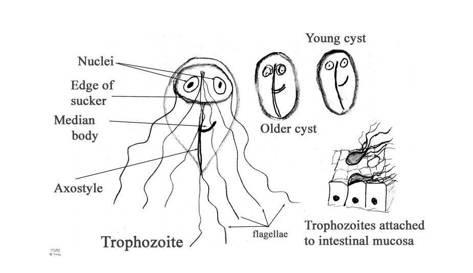 parazita felszerelés