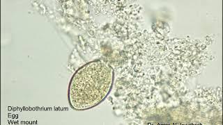 diphyllobothriasis antitestek fűszerek a helminták ellen