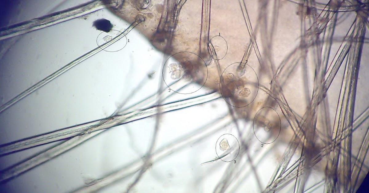rejtett paraziták a paraziták kezelése a szemben