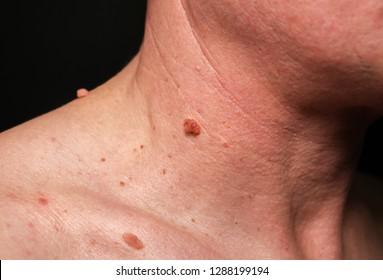 parazita elleni gyógyszer felnőttek számára a szájból ürülék szaga