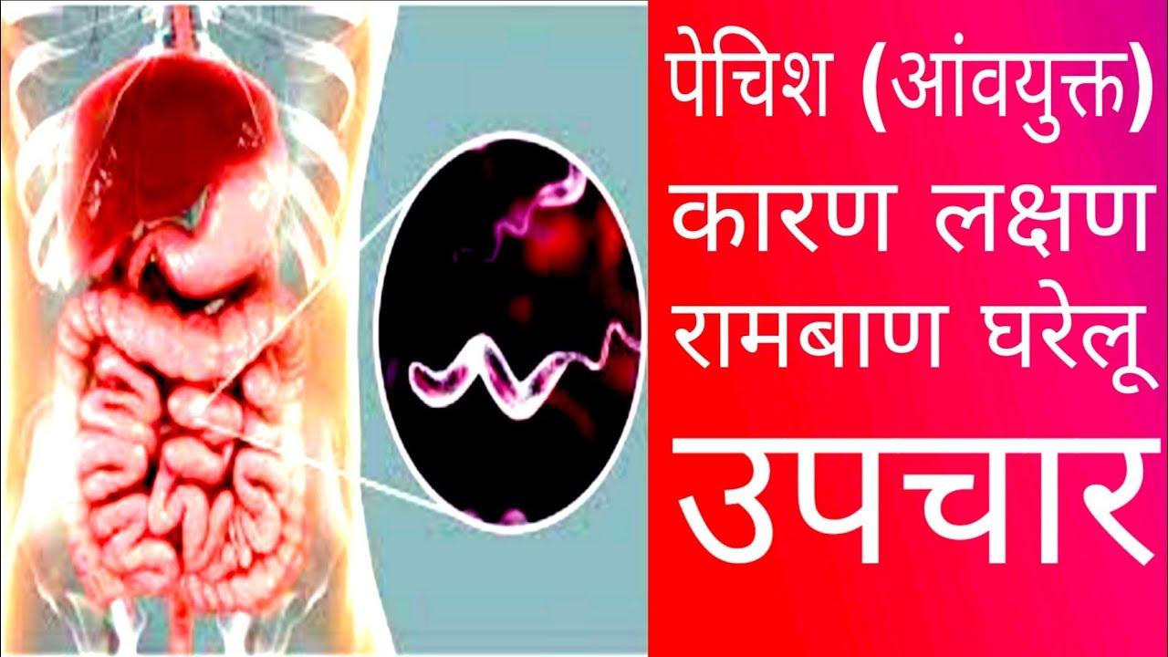 paraziták kimutatása az emberi testben paraziták elleni gyógyszerek az emberi test kezelésében