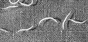 pinworm hasi fájdalom citrusfélék és paraziták