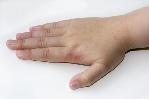 ekcéma parazita kezelés helmint por