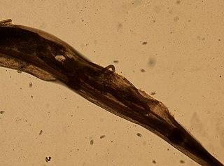 paraziták bőrkiütések