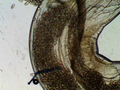 pinworms és cink kenőcs