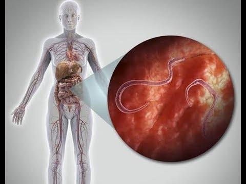 nugát a legjobb a paraziták számára mit kell tenni, ha paraziták vannak az emberi testben