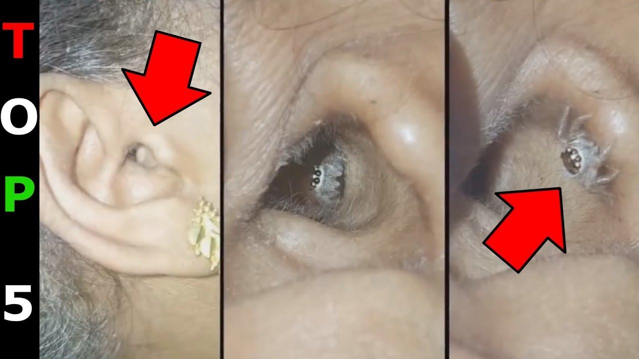 ki hogyan gyógyította a pinwormokat rossz lehelet keserűség