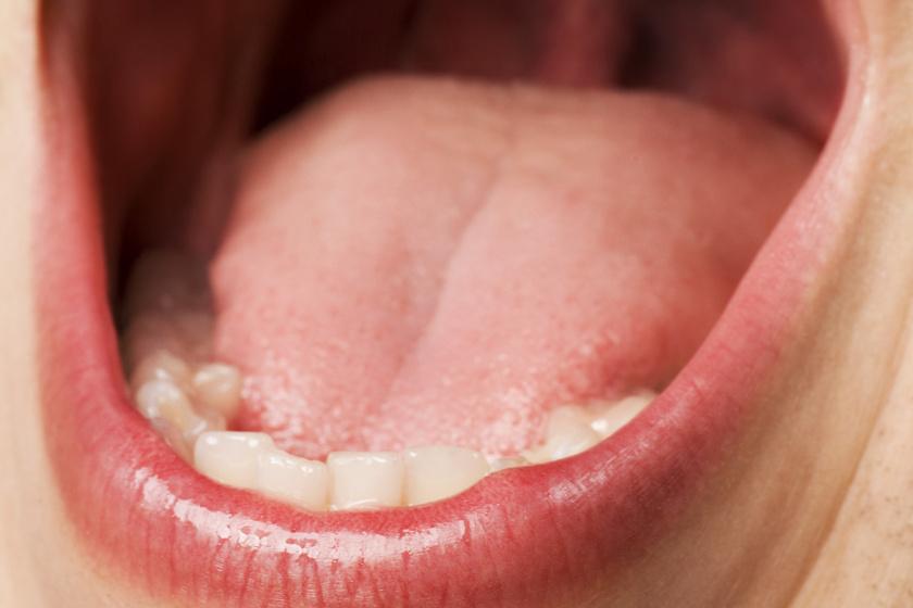 keserűséget okoz a szájban. szag a szájból pinworms egy felnőtt fórumban