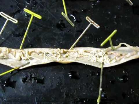 mi hasznos a paraziták ellen paraziták viszketnek az egész testen