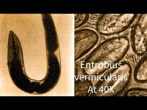 mit tud bevenni a pinworm- ral paraziták és következményeik