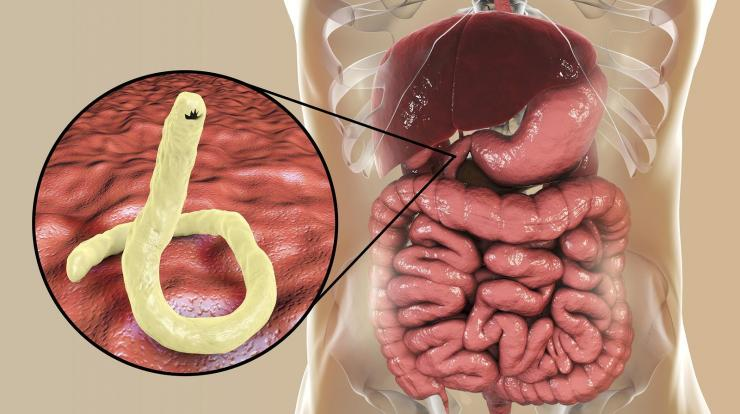 paraziták vagy megfertőzni körömféreg a gyomorban