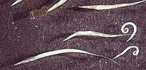 pinworm betegség neve rossz leheletet okozhatnak a paraziták miatt