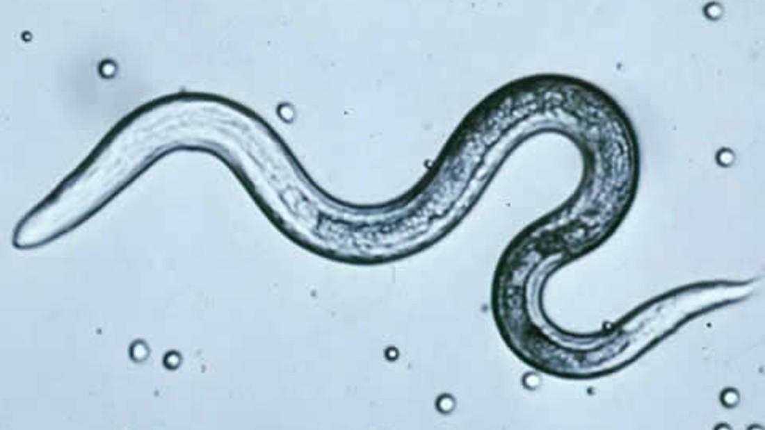 külső emberi paraziták hogyan kell kezelni a rossz lehelet okozta okokat