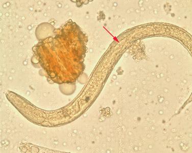 paraziták kezelése miatti allergia