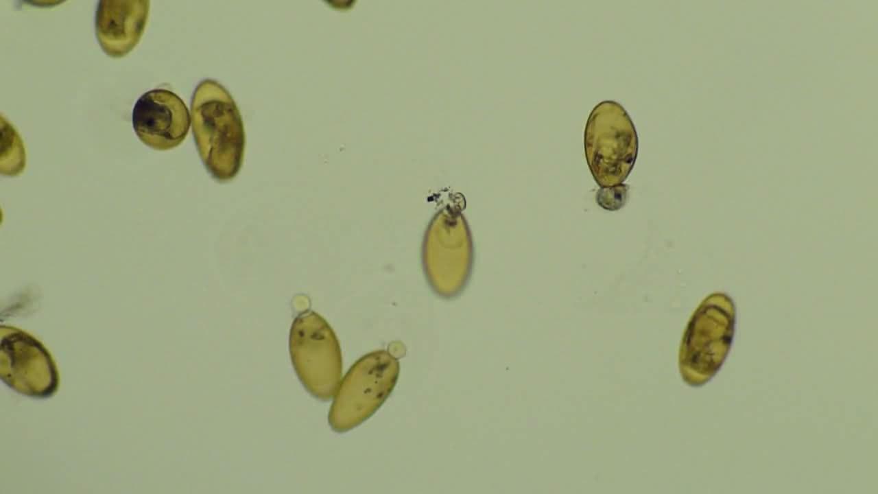 parazita fasciola hepatica az emberi ascaris megelőzése