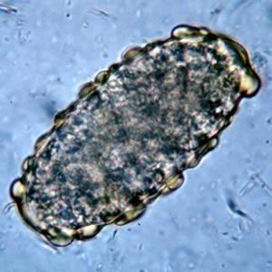 mik a pinwormok felnőtteknél