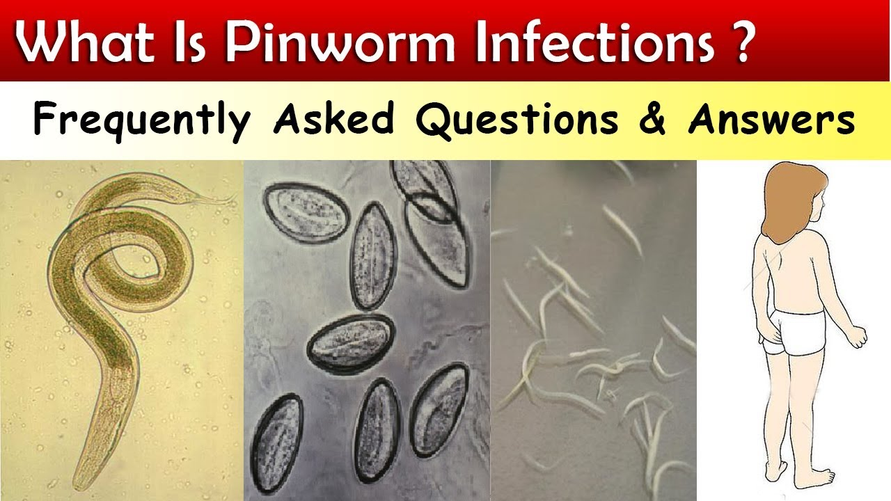 helminták pinworm kezelése