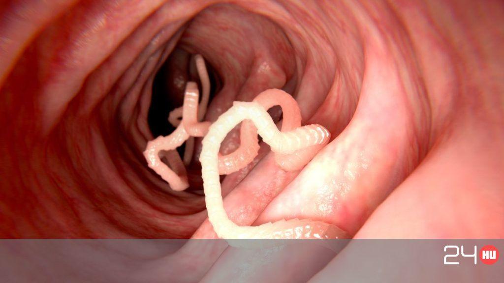 szójaszósz paraziták számára az ascariasis kórokozója