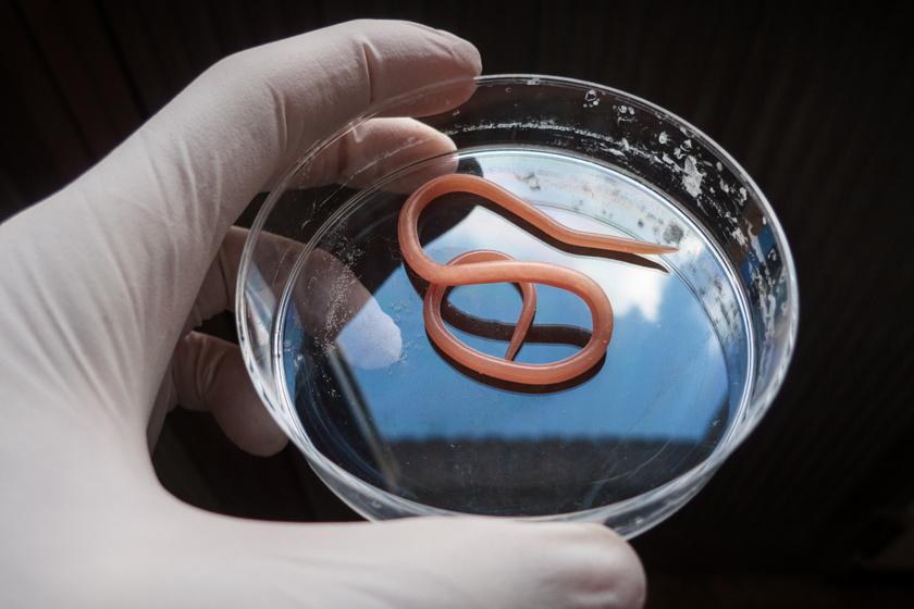 parazita fertőzi az embereket ki hogyan gyógyította a pinwormokat