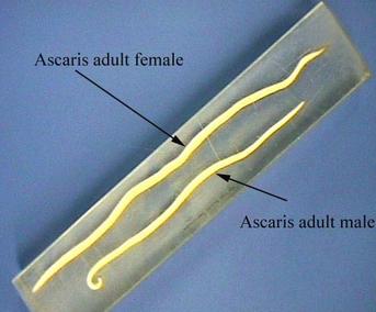 intézkedések a féregparaziták megelőzésére a leghatékonyabb orvosság pinworms vélemények
