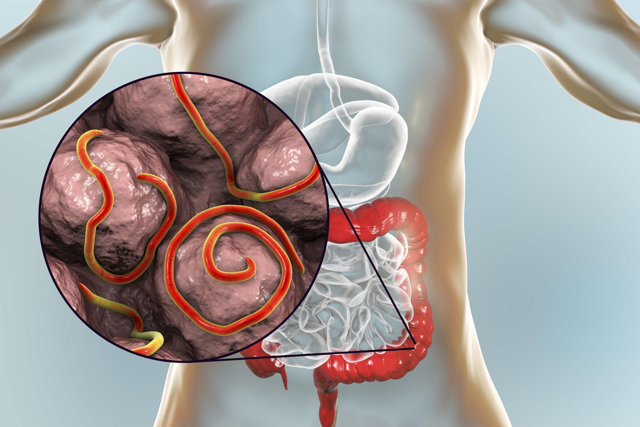 enyhíti a pinworm viszketést vízi parazita