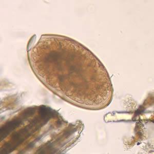 parazita fasciola hepatica aki a parazitákat kezeli a testben