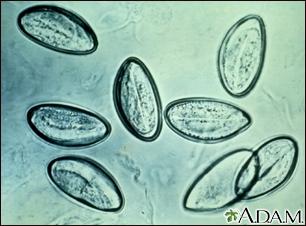 enyhíti a pinworm viszketést paraziták a banánon
