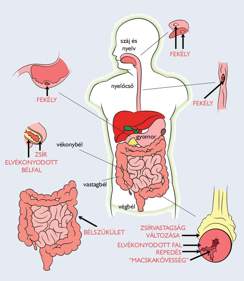 paraziták az emberi test receptjeiben