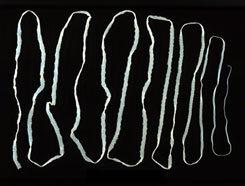 a gyomorégés és a rossz lehelet okai parazita féreg ostorféreg