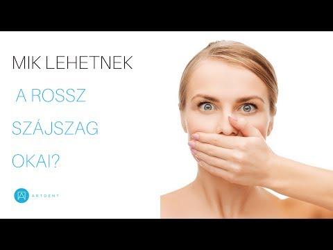 parazita a gyomorban, hogy kitisztuljon hogyan lehet eltávolítani a rothadó szagot a szájból