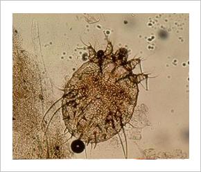 rüh bőr parazita férgek paraziták az emberben